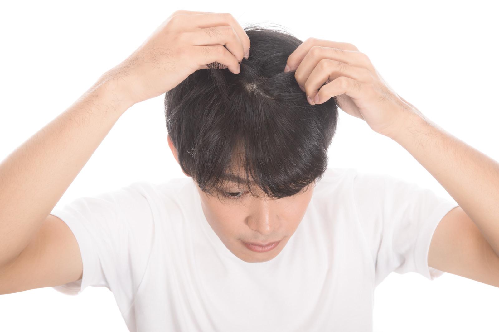 【薄毛の悩み】八丁味噌に育毛効果!?育毛効果のある食べ物とは